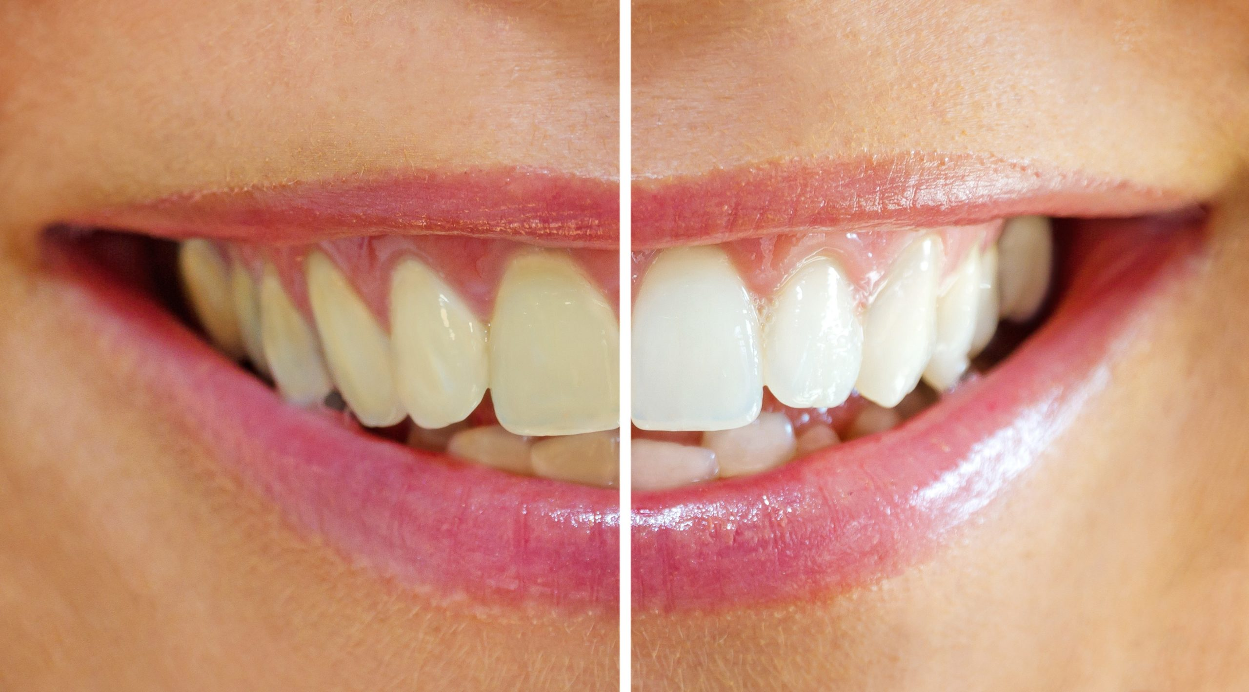 Zähne bleachen in Bern zu fairen Preisen bei der Zahnarzt Praxis Bern West.