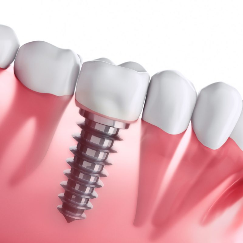 Zahnimplantat Bern